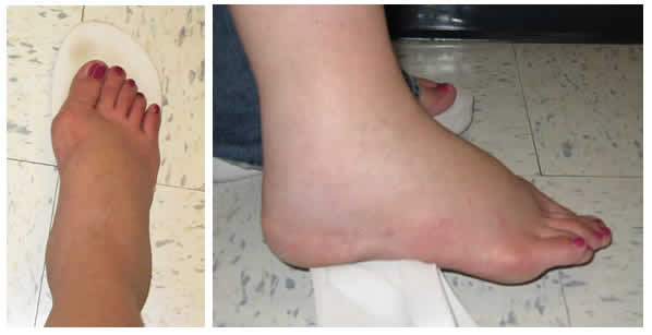The Pregnancy Feet I Used to Deal With: A Serious Case of Edema!