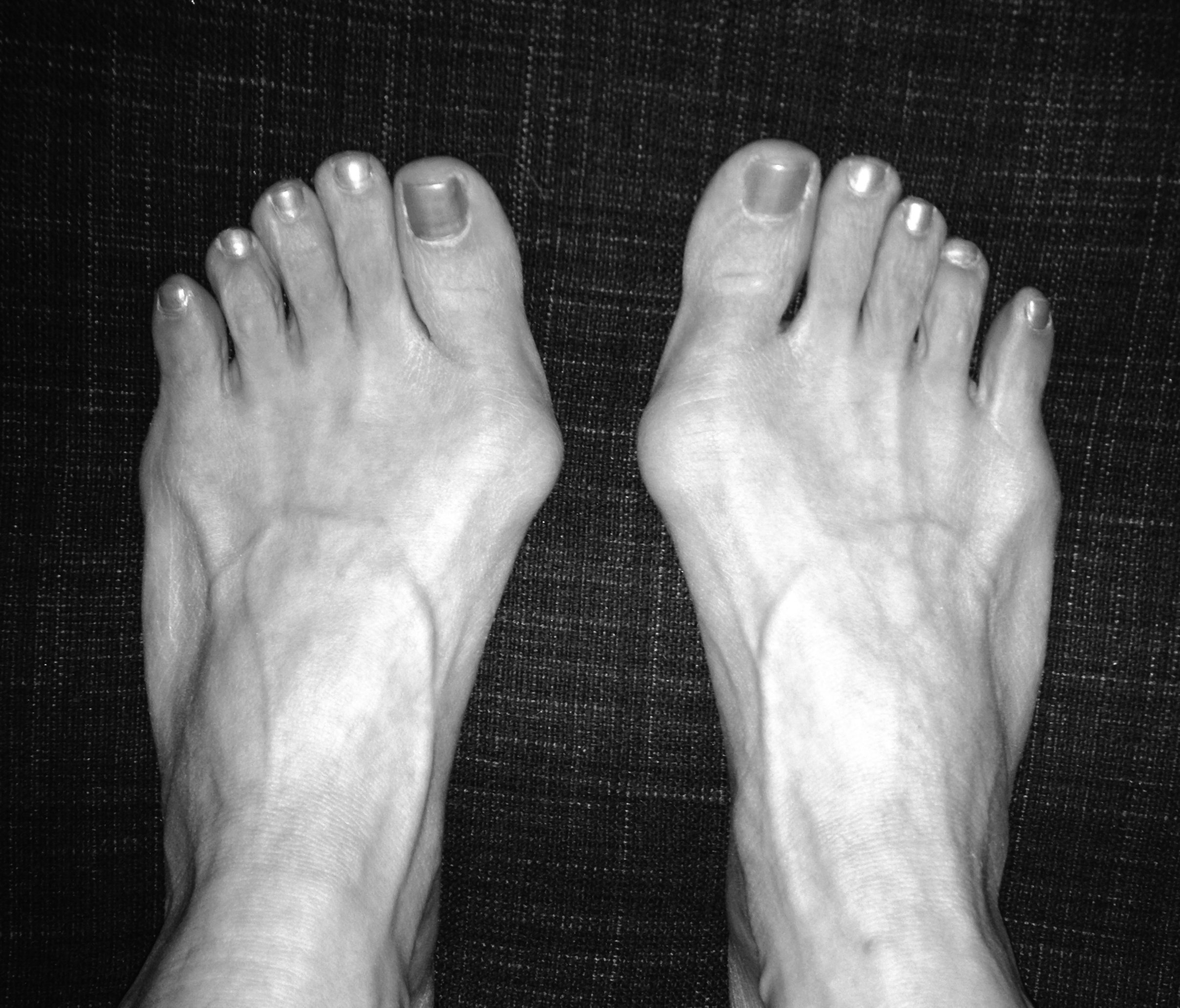 My perfectly imperfect feet - bunions and all! - https://heidipowell.net/227