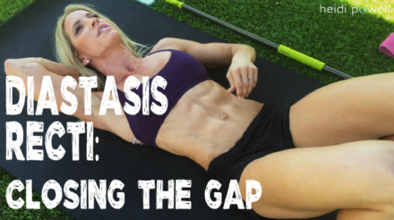 Diastasis Recti: Closing the Gap